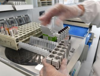 """Bologna sperimenta il tampone """"a bordo auto"""" per rilevare il Coronavirus"""